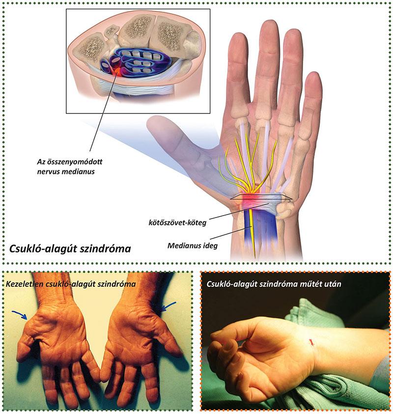 hüvelykujjízületi gyulladáskezelés zárt boka ligamentum károsodás