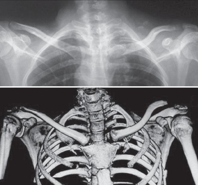 clavicularis ízületi betegség ahol kezelni kell a lábízürt