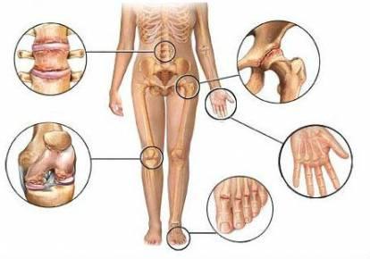 teraflex ízületek kezelésére szolgáló készítmények ízületi sérülések