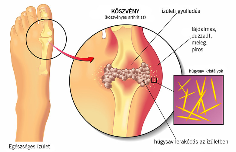 a lábak ízületei ízületi gyulladás