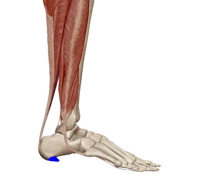láb artrózis cukorbetegség kezelése don felkészülés térdízületekre
