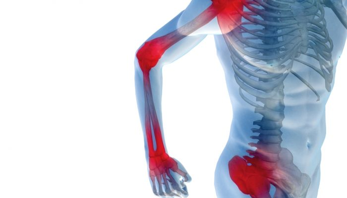 kenőcsök és dörzsölő izületi fájdalmak hogyan kezelik az ízületi rázkódást