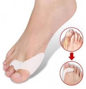 hogyan kezeljük a nagy lábujj ízületi gyulladását