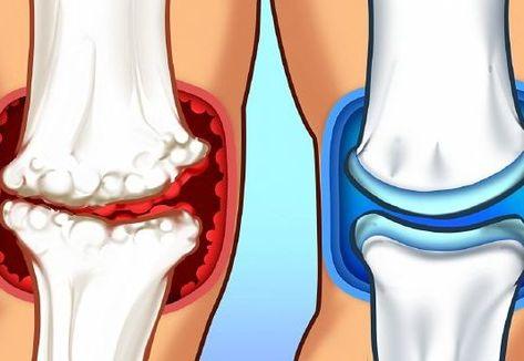terápiás gyakorlatok ízületi fájdalmak kezelésére ezoterikus ízületi fájdalom