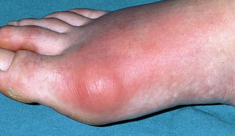 a lábujjak artritisz tünetei)