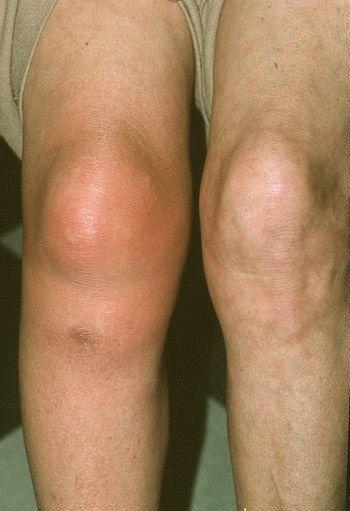 nyers burgonya artrózis kezelése fáj a nagy lábujj ízülete