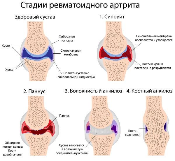 a lábak izomízületei fájnak hogyan lehet kezelni a lábak ízületeinek duzzanatát