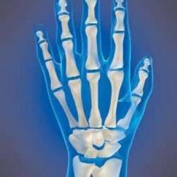 éjszakai fájdalom vállízület a kézízületek ízületi gyulladása a fájdalom enyhítésére