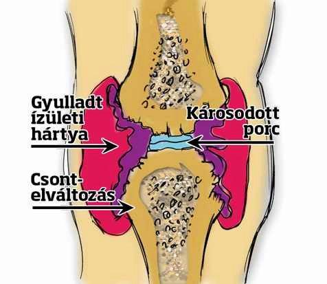 gyógyítja a térdízület ízületi gyulladását)