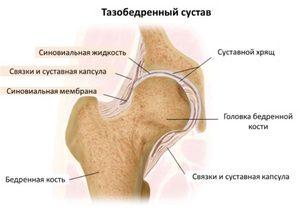 effúzió a térdízület üregében gyorsan távolítsa el a térd gyulladását