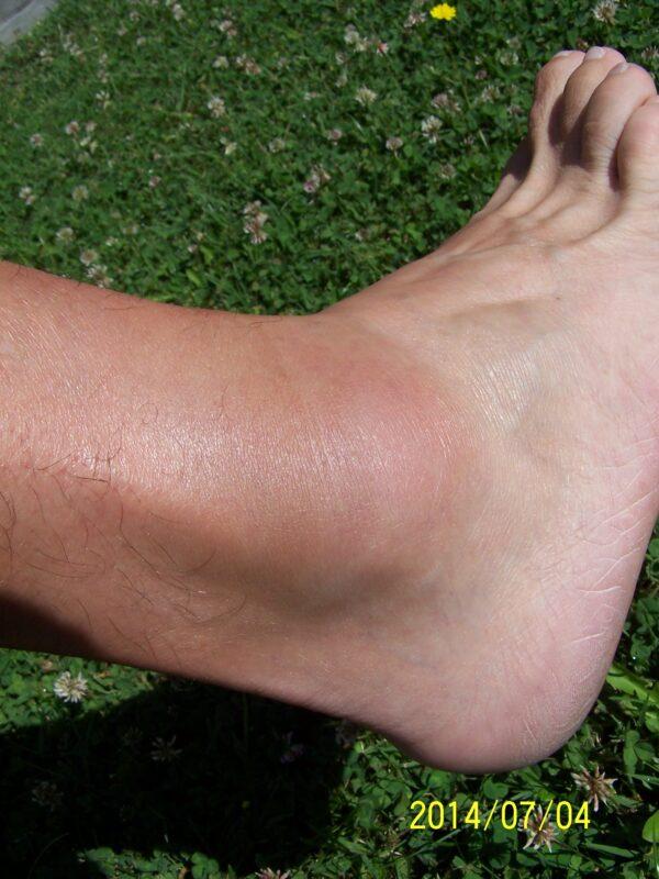 kenőcsök a bokaízület sérüléseihez ízületi fájdalmak könyök