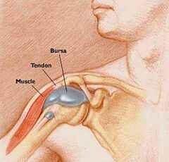 bursitis ízületi fájdalom nélkül