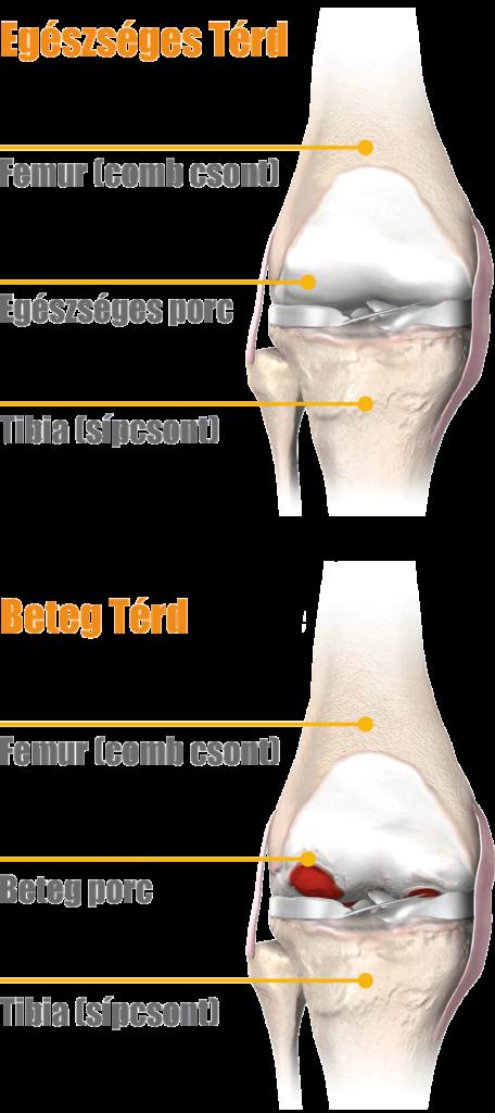 osteoarthrosis artrózis térd gonarthrosis