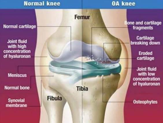 hogyan lehet megszabadulni a térdízület artrózisától