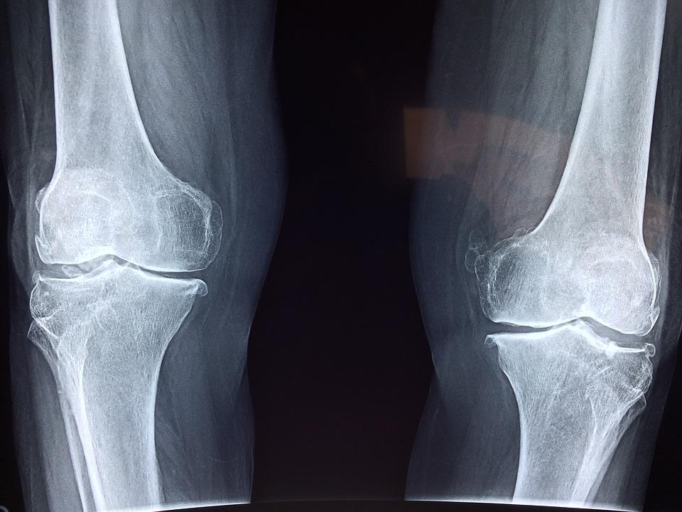 Hát- és ízületi fájdalmak esetén is segíthet a homeopátia - Hírek - alkoholstop.hu