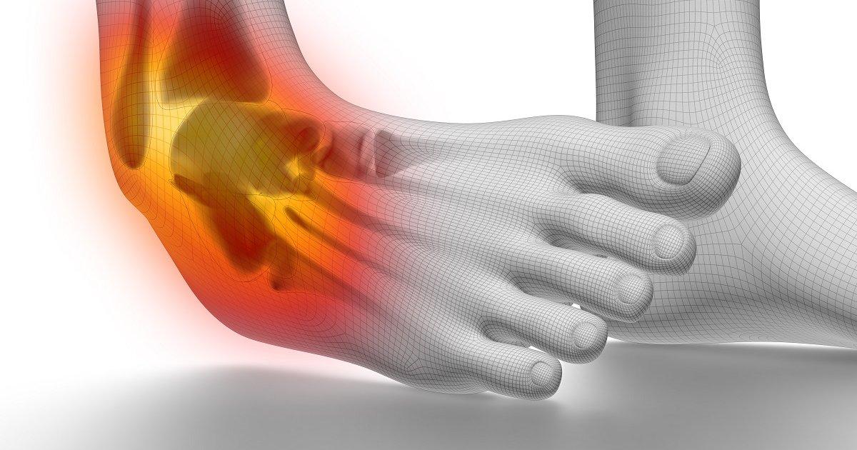 boka osteoarthritis műtéti kezelése