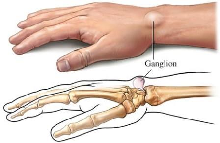 a könyök és a középső ujj ízülete fáj fáj a kis ujj ízületei