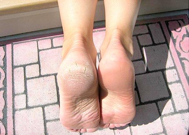 fájó lábak a boka reggel