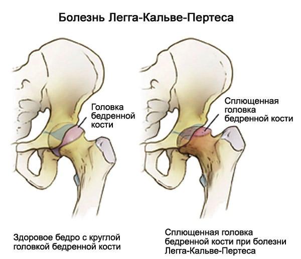 a vállízület csontritkulása, mit kell tenni az ízületek és a madarak kezelése