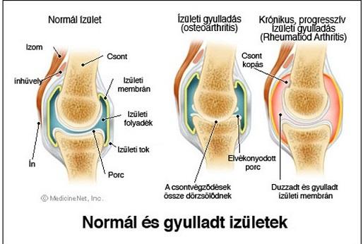 térdízületi betegség tünetei a kéz kis ízületeinek kezelése