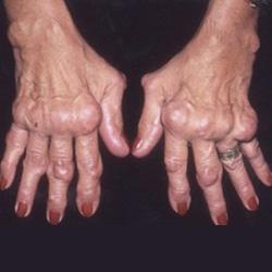 csípő-tünetek coxarthrosis és a kezelés áttekintése