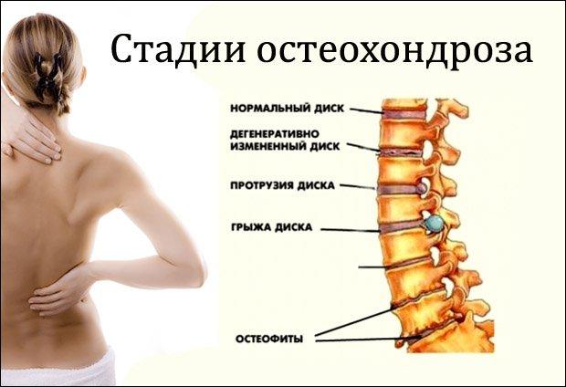 méhnyakos osteochondrozis kezelése fájó vállízületek, hogyan kell kezelni