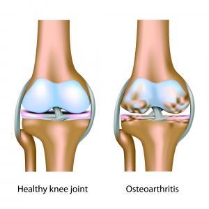 Shockwave Therapy for Knee Osteoarthritis   Lökéshullám terápia