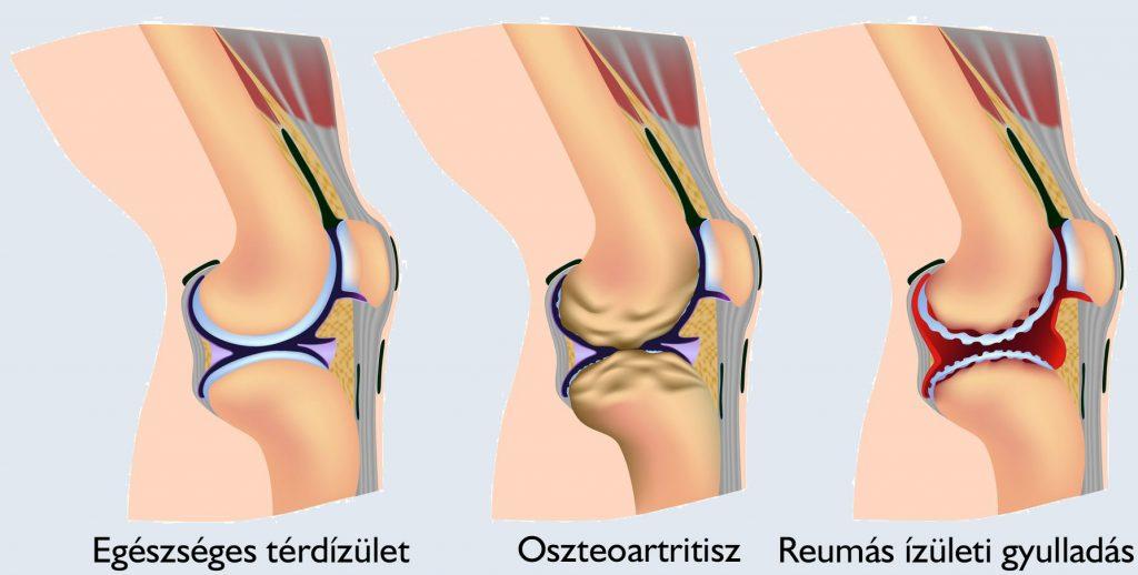 térdízületi gyulladások okai és kezelése a csípőízület deformáló artrózisának kezelése