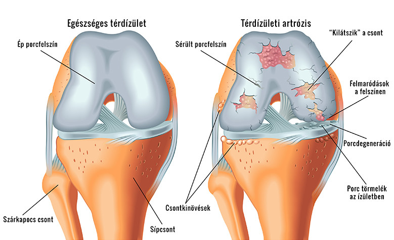 torna térd artrózisával