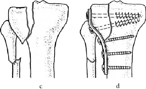 Egy kis chondropathia patellae et femoris lat. dextri - Fókablog