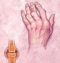 rheumatoid arthritis betegség