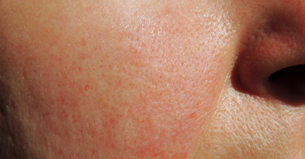 fájdalom és bőrpír térdízület gonarthrosisának súlyos fájdalom kezelése