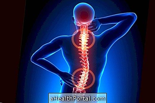 arthrosis spondylarthrosis kezelés