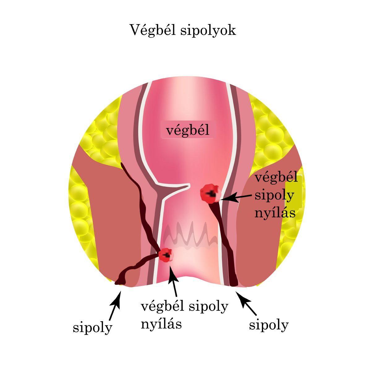 áttekintés a csípő dysplasia kezeléséről