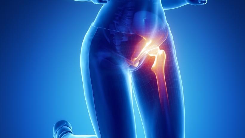 Nehéz a járás, fáj a csípő - ez a csípőízületi kopás - Egészséges ízületek