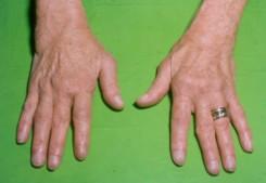 mi a kéz reumás ízületi gyulladása mit kell inni az ízület artrózisával