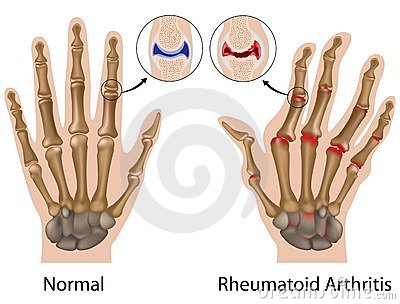 fájdalom az ujjak ízületeiben hajlítva