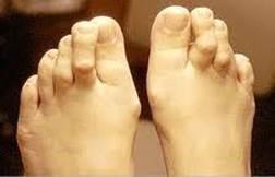 a nagy lábujjak ízületi műtéti kezelése csípőbursitis kezelés