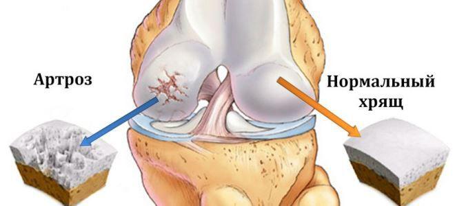 a térdízület belső meniszkuszának károsodása 2 fokkal