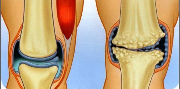 interkostális ízületi gyulladás kezelése tabletták a könyökízület artrózisának kezelésére