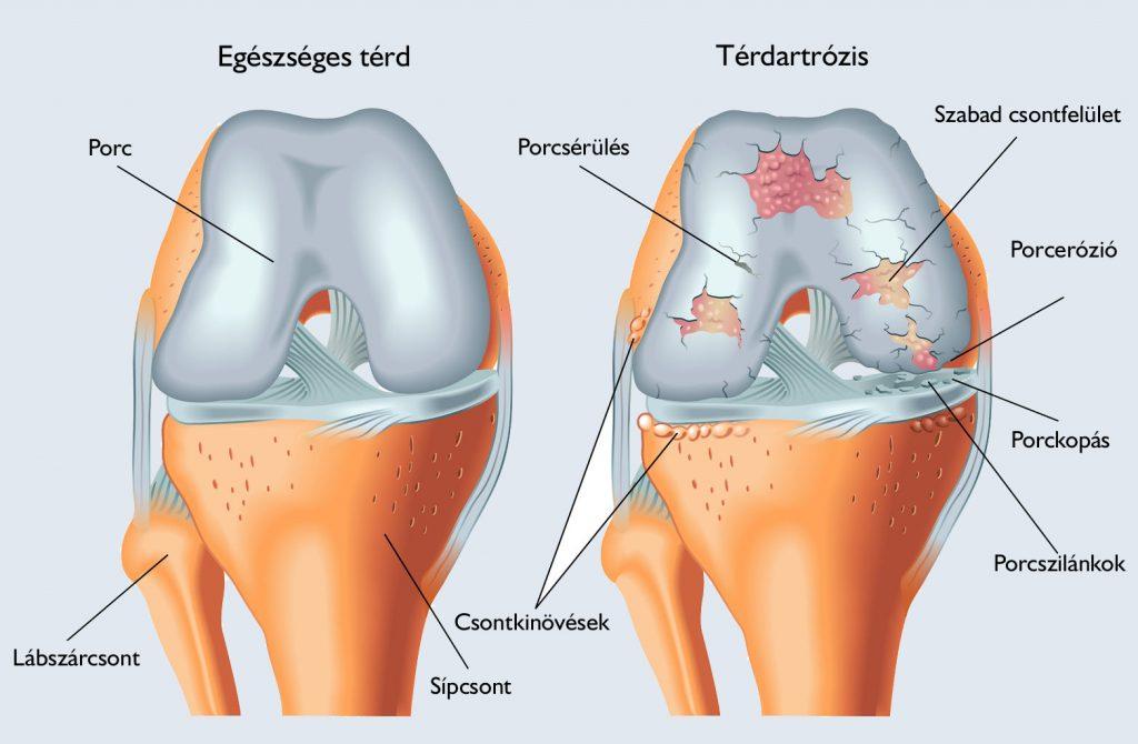 könyök porcleválás tünetei a térdízület külső oldalsó ligamentuma fáj