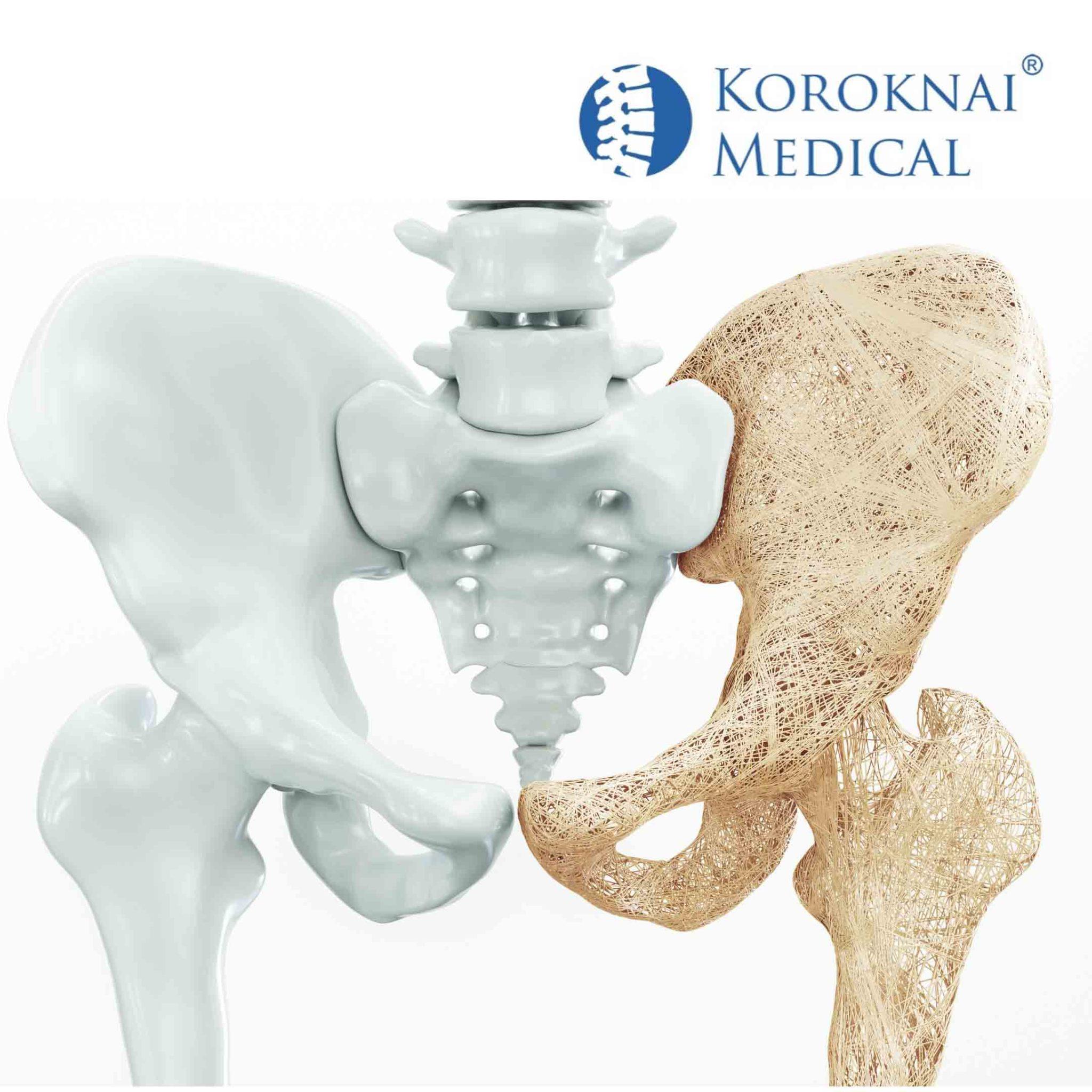 kesztyű ízületi fájdalmakhoz lábgyulladás az ízületben