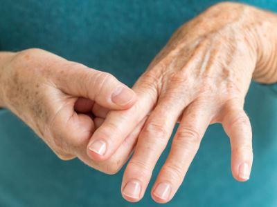 nem lehet ujjaival duzzadt artritisz artrózis 2 fokos kezelés