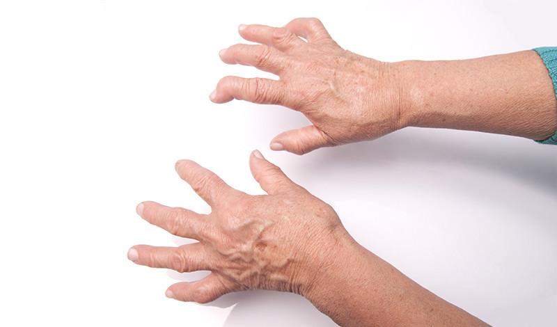 mi a kéz reumás ízületi gyulladása