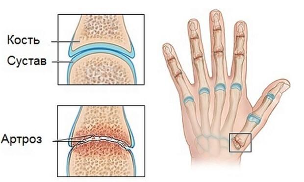 az ujjak ízületei fájnak, ízületi gyulladás nem súlyos könyökfájdalom oka