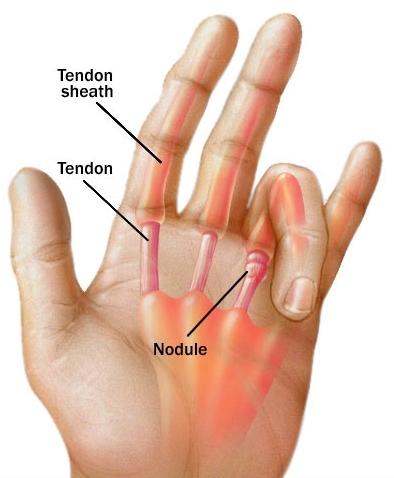 nem drága közös kenőcs a hüvelykujj artrózisának kezelése
