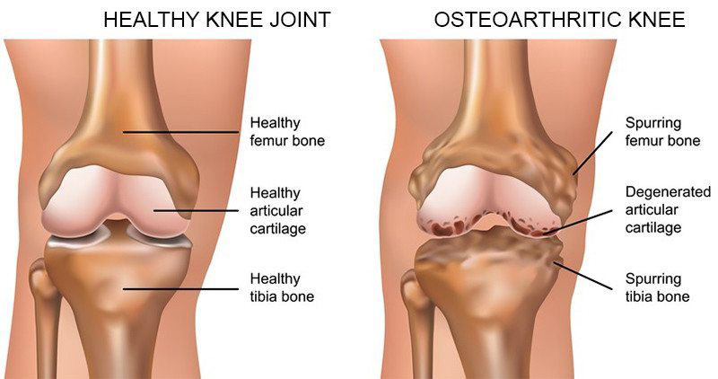 fájdalom a bal comb combjától a térdig a térd artrózisának kezelésének kezdeti stádiuma