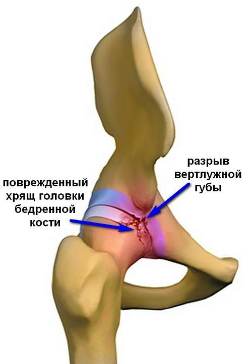 Csípő ütközési szindróma | alkoholstop.huán István ortopéd sebész praxisa