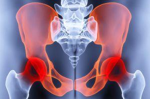 csípőízületek betegsége gyógyszer a csípőízület idegének becsípésére
