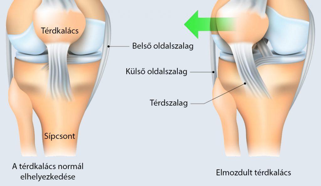 fájdalom és mozgásmerevség a térdízületben kondroitin-glükozamin komplex gél